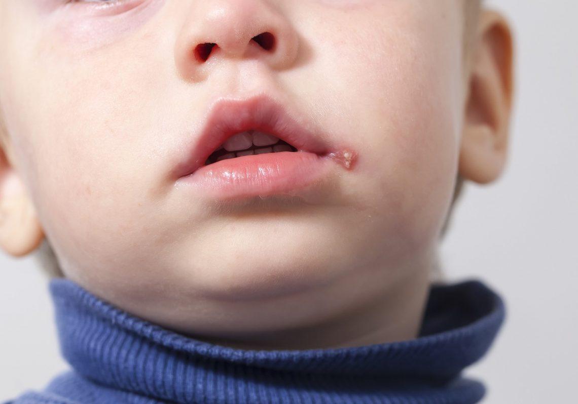 opryszczkowe zapalenie skóry u dzieci